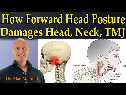 How Forward Head Posture Damages Head, Neck, & TMJ - Dr Mandell
