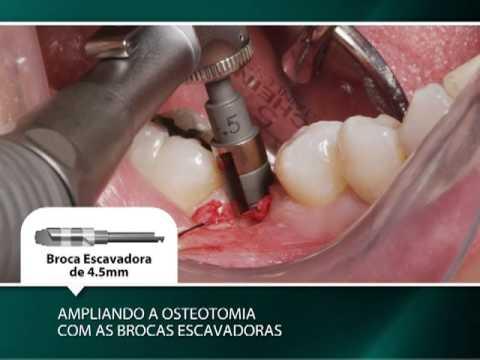 Técnica Cirúrgica de Dois Estágios: Colocação de um Primeiro Molar Inferior Direito