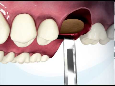iRaise sinus lift system   animation