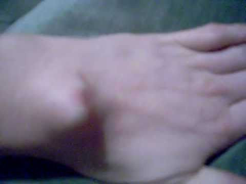 Ro's 5th & 6th Ganglion Cysts 28.06.2011