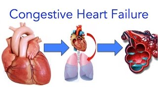 ✔ Congestive Heart Failure (CHF) Explained - MADE EASY