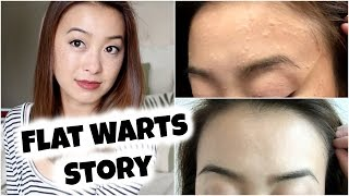 getlinkyoutube.com-My Flat Warts Story + Spontaneous Regression (With Pictures)