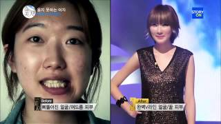 getlinkyoutube.com-Gangnam Style TOP Plastic Surgery, Best Before and After - South KOREA SEOUL