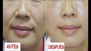 Quita las Arrugas de tu boca en 3 Días éxito garantizado al 100%