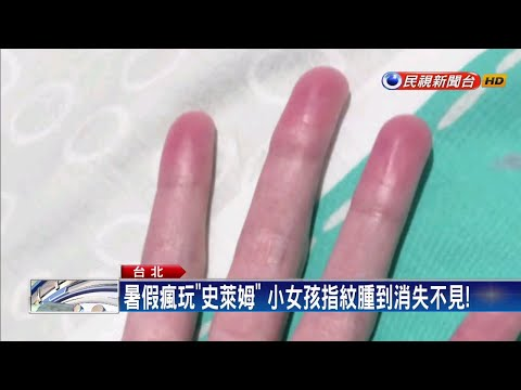 手指腫到像香腸!竟是小玩具「史萊姆」作祟-民視新聞 - YouTube