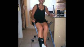 Sprained and aircasted ankle