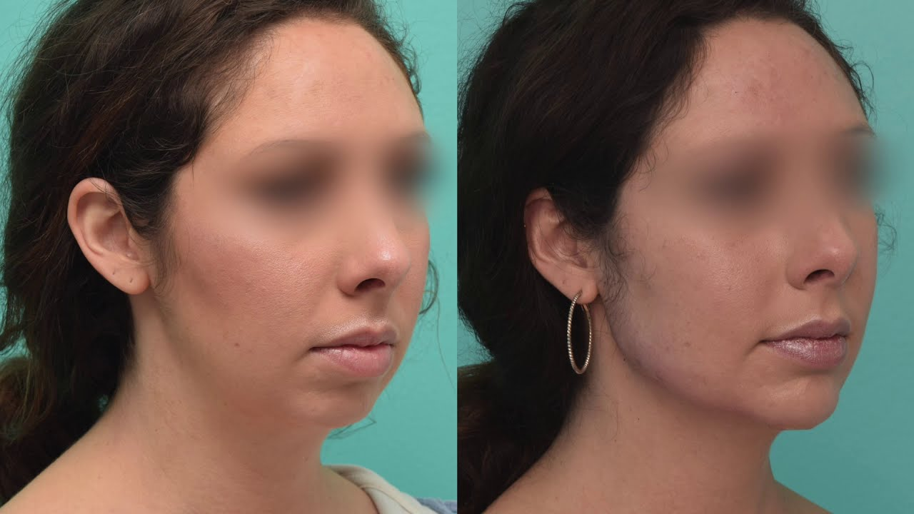 Client before and after chin implant