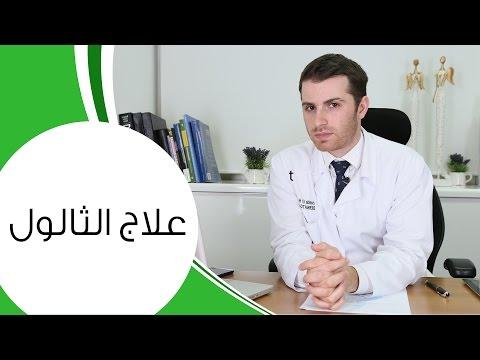 الثالول: أسبابه وطريقة علاجه | مع الدكتور كوستي