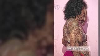 Indonesian na babae, tinakwil ng pamilya dahil sa kanyang kakaibang skin disease!