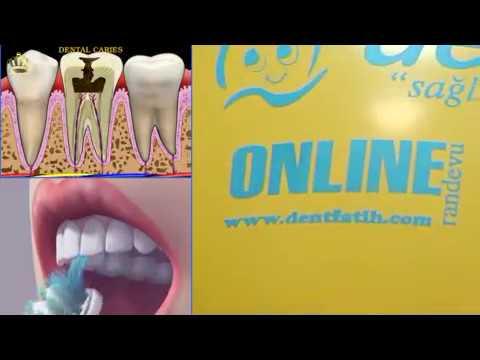 TR- NUR POLİKLİNİĞİ - diş polikliniği - fatih dental - fatih diş hekim - fatih implant