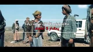 الحوثي يقتل الأطفال