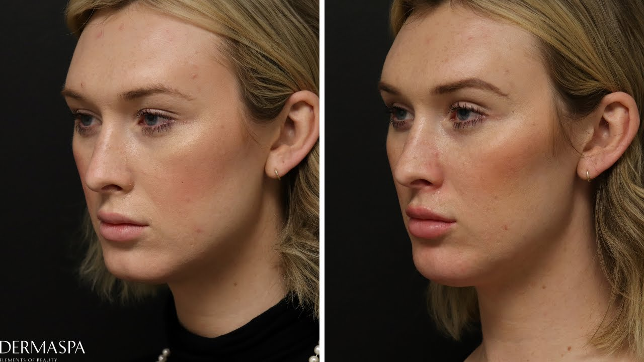 Preview of Dermal filler and Botox Cosmetic®: Brae- 29 y.o.