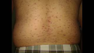 Psoriasis Can Cure 2 width=