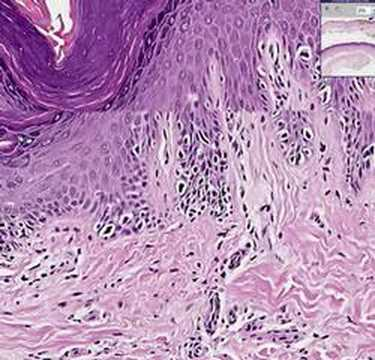 Histopathology Skin--Melanoma in situ
