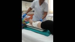 Curación de herida con tutores externos