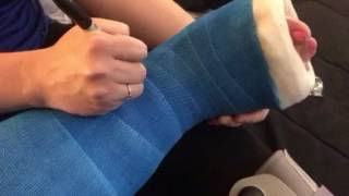 Bootzy signing her leg cast