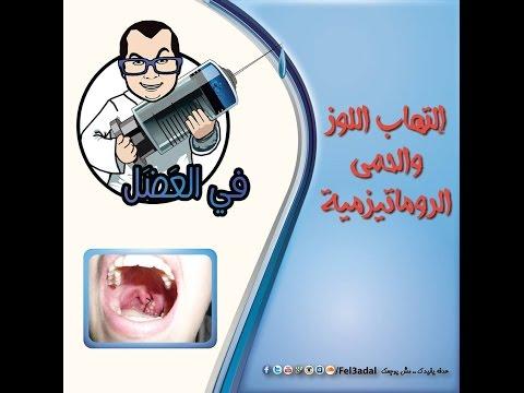 في العضل   التهاب الحلق واللوز والحمى الروماتيزمية