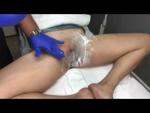 Download Video SUGARING: 15 Minute Brazilian With Sugar