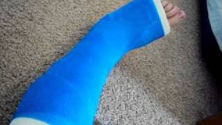 Broken foot... Bluee leg cast