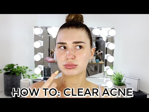 HOW TO CLEAR BREAKOUTS ON THE HOLIDAYS   Shani Grimmond