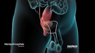 Robotic Prostatectomy   Prostate Cancer   Oncologist   Manipal Hospitals