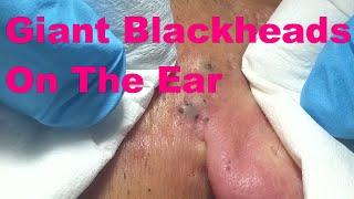 Giant Blackheads On The Ear - Part I -