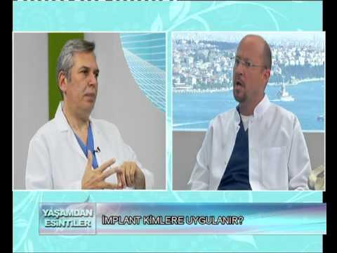 KANAL_A YASAMDAN ESINTILER 05_07_2012.DR.NİHAT TANFER