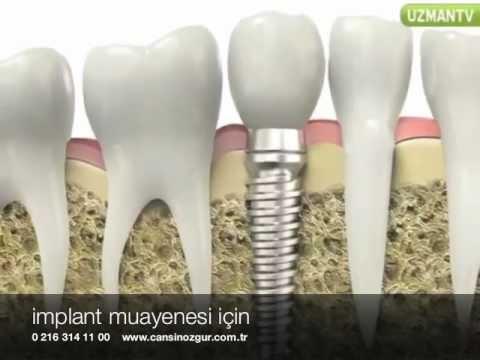 implant diş nasıl yapılır? Diş Hekimi Cansın Özgür anlatıyor...