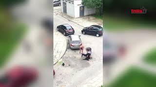Pit Bull zaatakował kobietę i jej psa! [DRASTYCZNE NAGRANIE WIDEO]