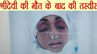 Sridevi की First Picture आई सामने, मौत के बाद की पहली तस्वीर   वनइंडिया हिन्दी