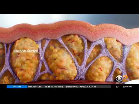 Dr. Katz on CBS for the Revolutionary New Cellulite Treatment: QWO!