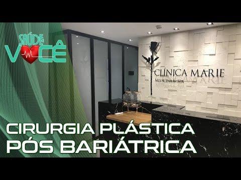 João Paulo Figueiredo - Galeria