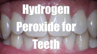 Hydrogen Peroxide for Teeth - Teeth Whitening Tips