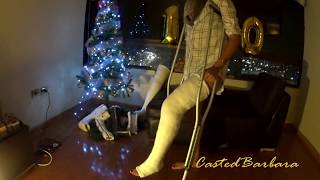 Plaster long leg cast LLC
