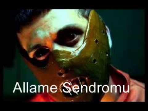 Allame Sendromu