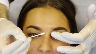 Complete start to finish Non Surgical Nose Job