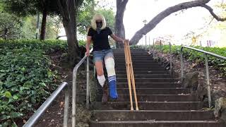 Fell Down the Stairs and Broke My Leg - Now Hopping and Crutching in My New Cast! Ep. 2