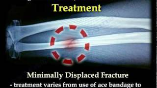 Nightstick Fracture , Ulnar Shaft  fracture - Everything You Need To Know - Dr. Nabil Ebraheim