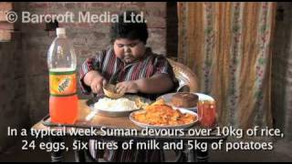 5 Year Old Child Weighs 75 Kilograms