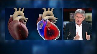 """Cœur artificiel Carmat: le 2nd implanté a repris une """"vie normale"""" explique Alain Ducardonnet"""