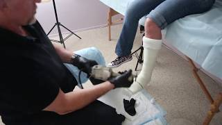 Short Leg Cast with Toe Plate