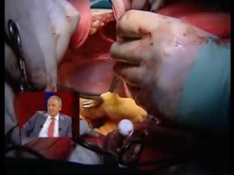 açık kalp ameliyatı bypass Özel Keçiören Hastanesi