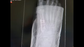 I Broke My Foot Update| | Cast Off - Stiches Out