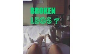 BROKEN LEGS?