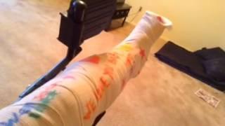 Я сломала ногу