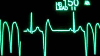 Paro Cardiaco / Cardiac Arrest