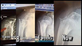 Broken Arm Results August 2016