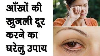 Ankh ki Khujli ka Gharelu Upay ||आँखों की खुजली दूर करने का घरेलु उपचार width=