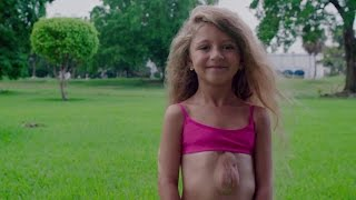 A menina que vive com o coração fora do peito