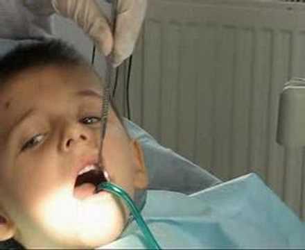 ağrısız iğnesiz diş dolgusu